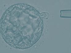 [여성의학연구소]<br>배아 배양일에 따른 차이점<br>(3일 배양 VS 5일 배양)